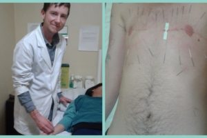 Two pictures of Otis Bell, a white, trans Traditional Chinese Medicine practitioner. On the left picture, Otis is inserting an acupuncture needle into the arm of a patient. On the left is a picture of Otis' chest with acupuncture needles surrounding his chest surgery scars.